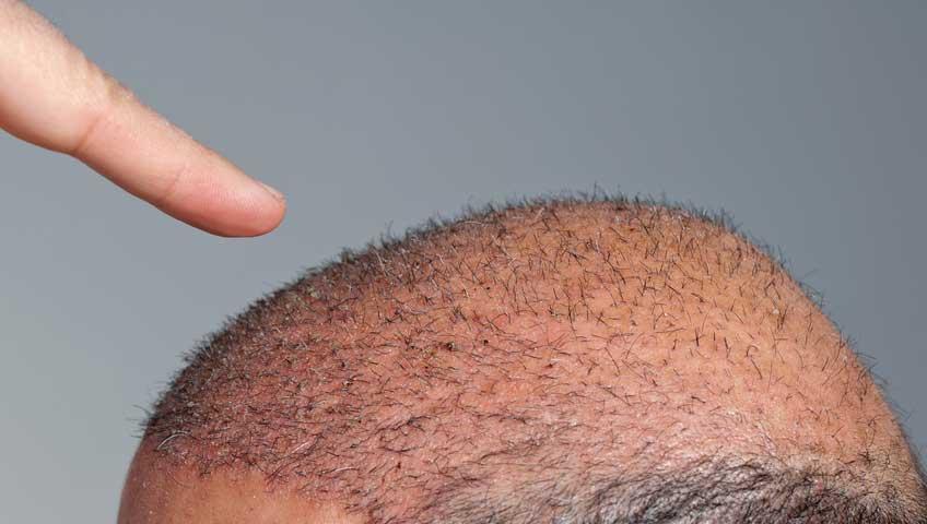 Saç Ekimi Sonrası Yapılması Gerekenler